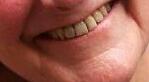 natürliche Behandlung, Gefahren des Mundgeruchs